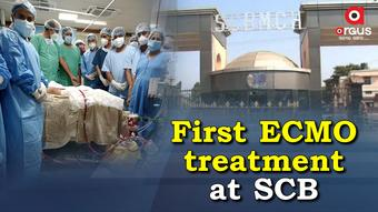First ECMO treatment begins at SCB Medical College and Hospital in Cuttack